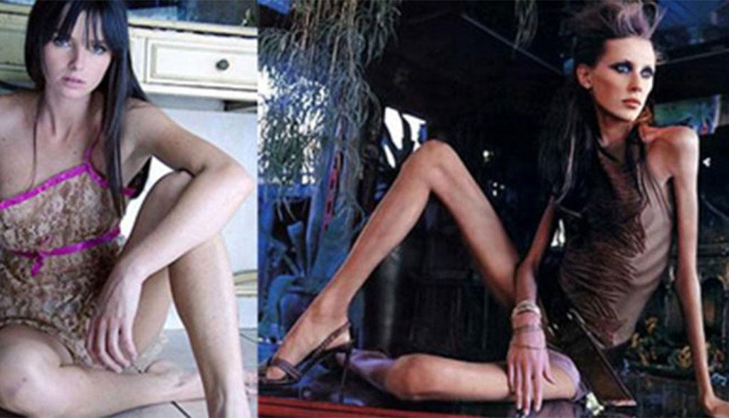 Siêu ốm như Kate Moss vẫn lên bìa British Vogue 34 lần - Ảnh 1.