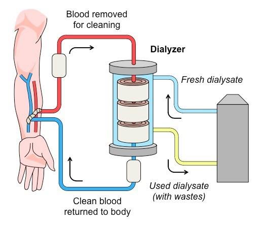 Lọc máu liên tục cứu sống bé trai bị tay chân miệng