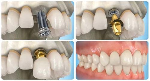 """Điều kỳ diệu, răng đã mất """"mọc lại"""" chỉ 4 tuần - Ảnh 2."""