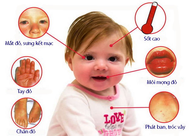 Bệnh Kawasaki ở trẻ em - Ảnh 1.