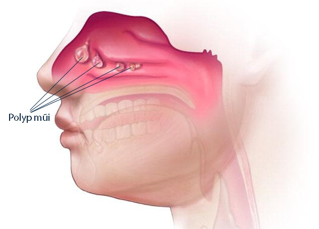 Polyp mũi - Nguyên nhân và cách điều trị - Ảnh 1.