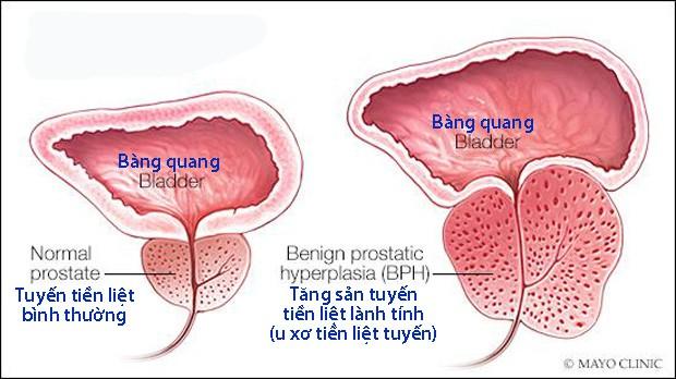 Những triệu chứng u xơ tiền liệt tuyến thường gặp - Ảnh 1.