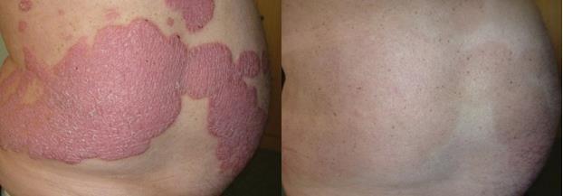 Kiểm soát hiệu quả bệnh vảy nến bằng thảo dược - Ảnh 2.