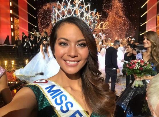 Đài truyền hình quốc gia lộ ngực thí sinh Hoa hậu - Ảnh 1.