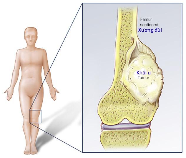 Ung thư xương và đau - Ảnh 1.