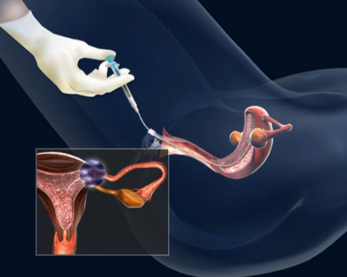 Видео с передачей спермы видео жена