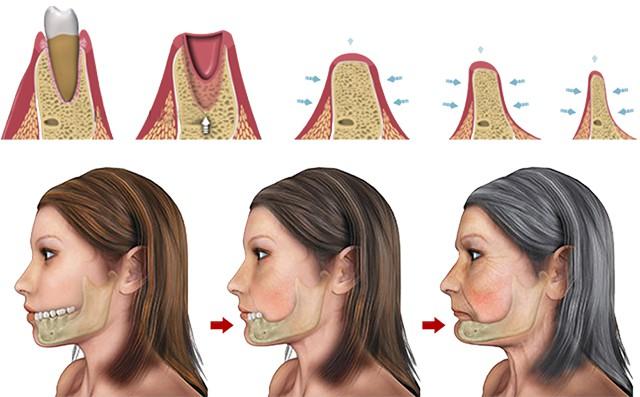 Nha khoa cấy ghép Implant cho người bị mất răng lâu năm - Ảnh 2.