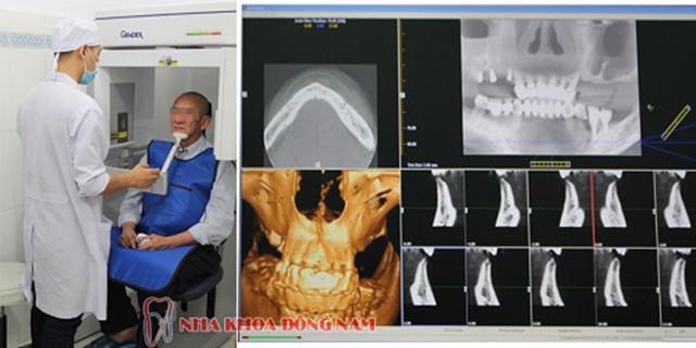 Nha khoa cấy ghép Implant cho người bị mất răng lâu năm - Ảnh 4.