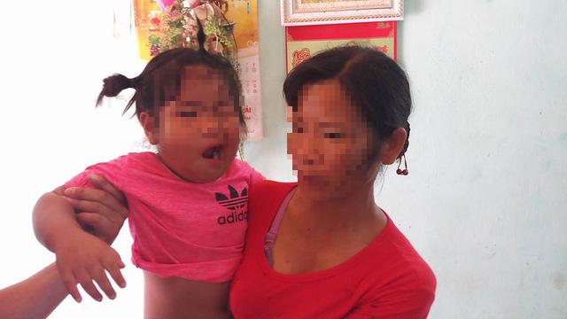 Đề nghị làm rõ vụ cháu bé 3 tuổi méo miệng nghi bị cô giáo đánh - Ảnh 1.