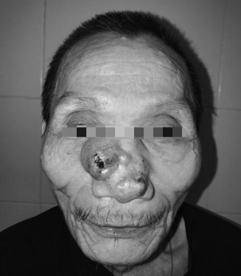 Tái tạo toàn bộ mũi và má cho bệnh nhân ung thư - Ảnh 1.
