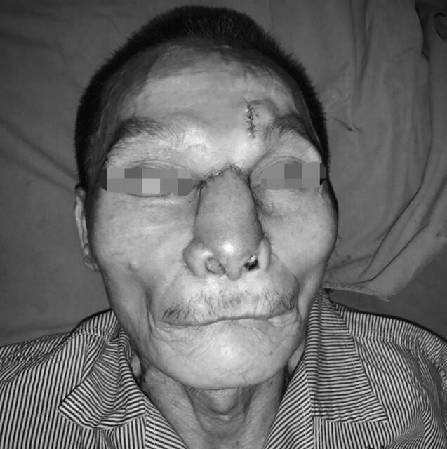 Tái tạo toàn bộ mũi và má cho bệnh nhân ung thư - Ảnh 2.