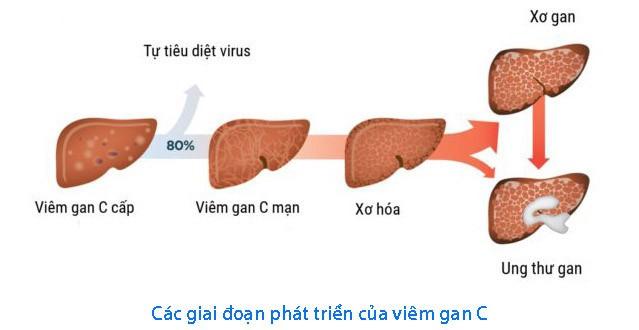 Biểu hiện viêm gan C ở phụ nữ - Ảnh 1.