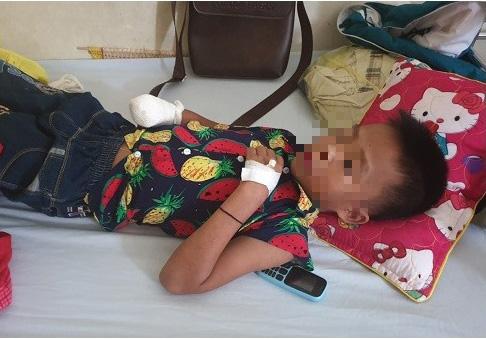 Đèn pin đang sạc phát nổ, bé trai 9 tuổi bị mất bàn tay - Ảnh 1.