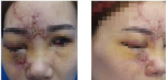 Mù mắt sau tiêm filler nâng mũi tại Đài Loan - Ảnh 1.