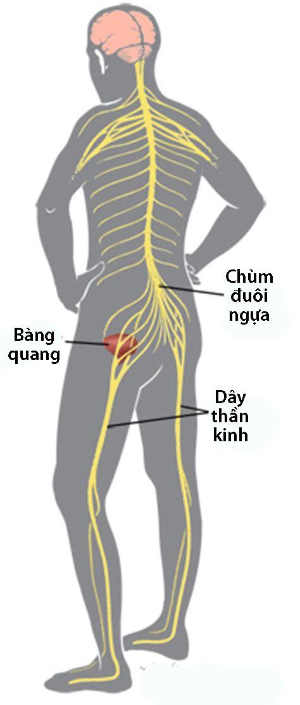 Hội chứng chùm đuôi ngựa - Ảnh 1.