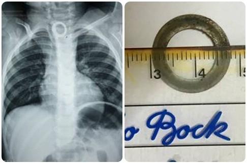 Bé 2 tuổi nuốt phải chiếc vòng kim loại có cạnh sắc - Ảnh 1.