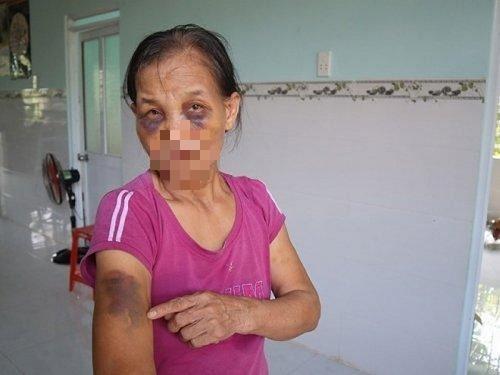 Đấm mẹ chồng bầm tím 2 mắt, nàng dâu bị phạt 2 triệu đồng - Ảnh 1.