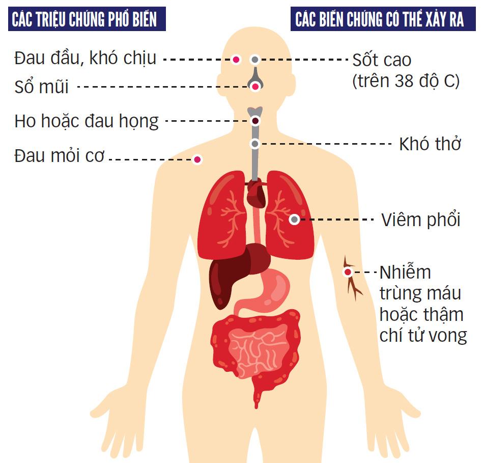 10 người dân Việt Nam hiến phổi cứu phi công Anh, ngành y tìm nguồn từ người chết não - Ảnh 3.
