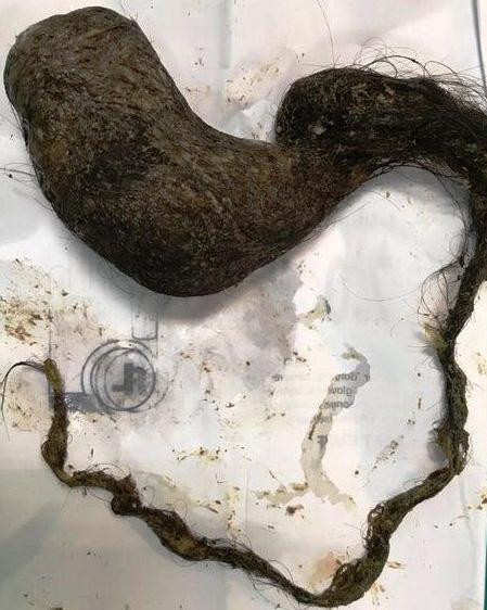 Phẫu thuật lấy búi tóc gần 1kg trong dạ dày nữ bệnh nhi 11 tuổi - Ảnh 2.