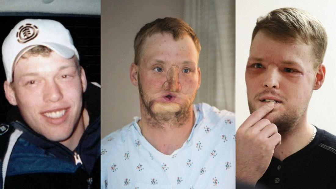 Kỳ tích ghép mặt và những cuộc đời được cứu vớt - Ảnh 2.
