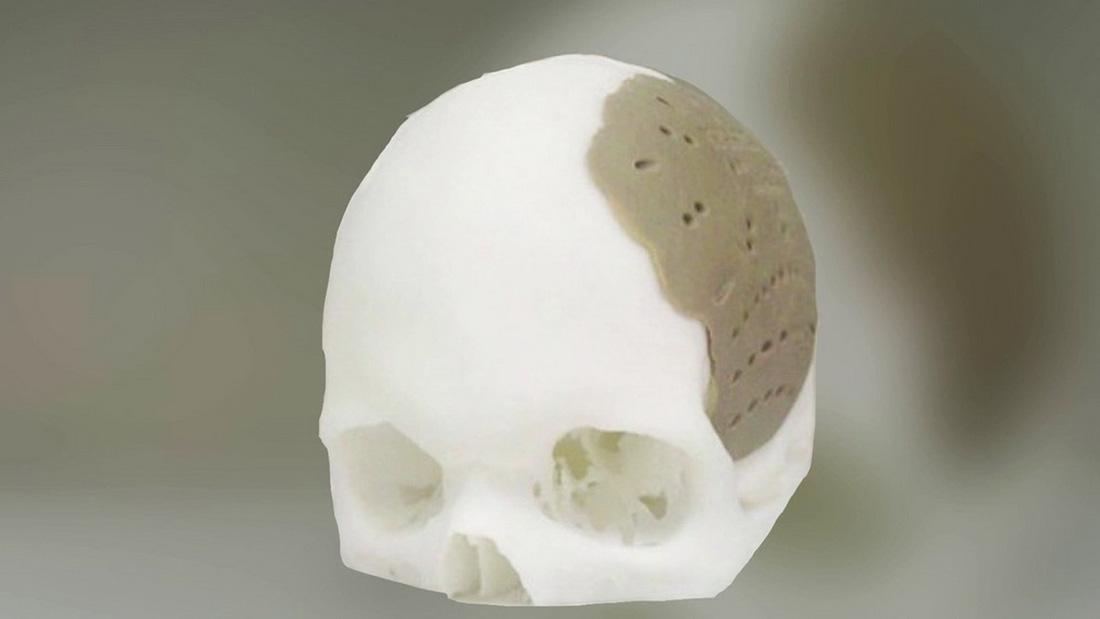 In 3D đang tạo ra phép màu trong y học - Ảnh 5.