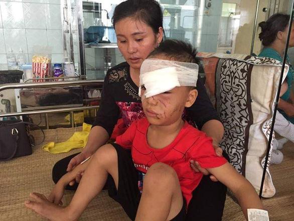 Thanh Hóa: 1 tuần 3 trẻ nhập viện do bị chó nhà nuôi cắn - Ảnh 1.