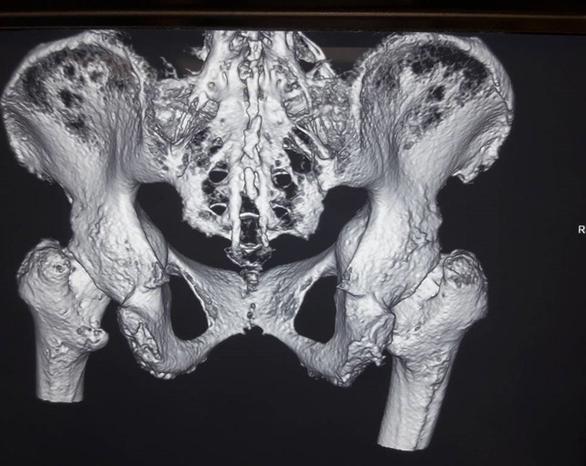 Thay hai khớp háng giúp người viêm cột sống dính khớp đi lại - Ảnh 1.