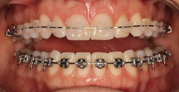 Niềng răng để khỏe, đẹp hơn - Ảnh 5.