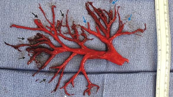 Vì sao bệnh nhân Mỹ ho ra máu đông hình cây phế quản? - Ảnh 1.