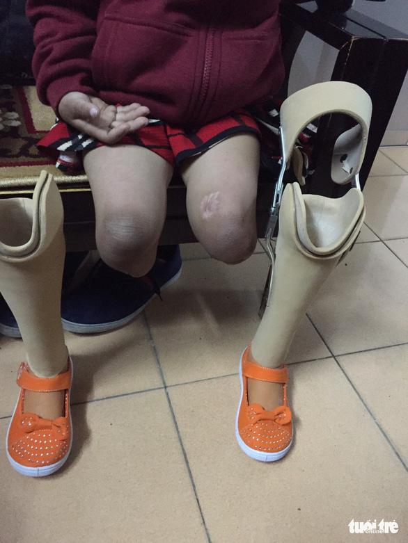 Tết này, Gống đã thôi đi nhờ đôi chân chị - Ảnh 2.