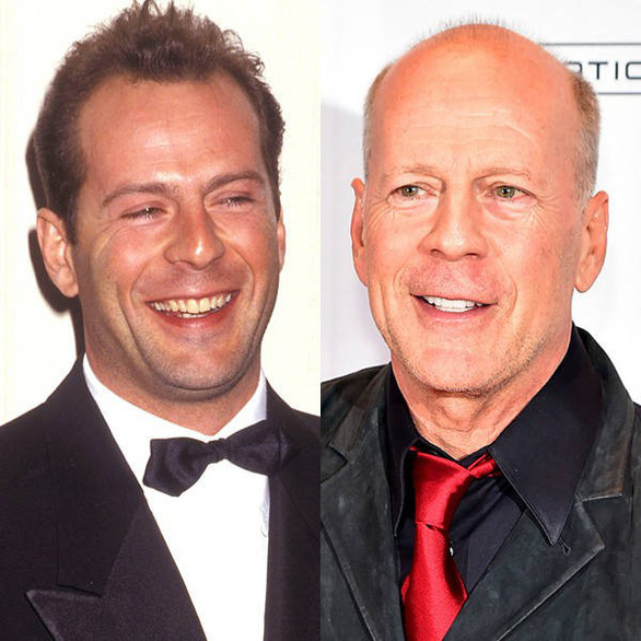 Với The Rock, Vin Diesel, Bruce Willis... thì hói vẫn rất đẹp - Ảnh 5.
