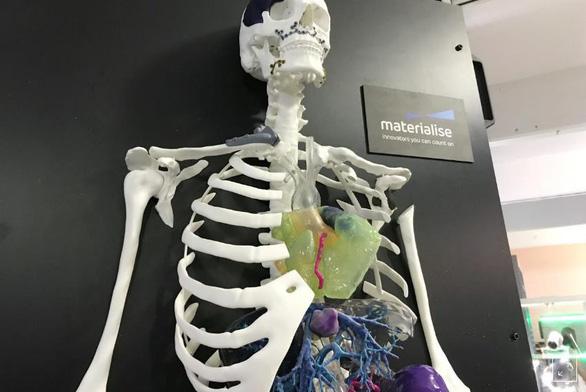 Các bệnh viện đã bắt đầu tạo ra bộ phận cơ thể bằng công nghệ in 3D - Ảnh 1.