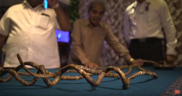 Cắt bỏ bộ móng tay kỷ lục Guinness thế giới sau 66 năm gìn giữ - Ảnh 7.