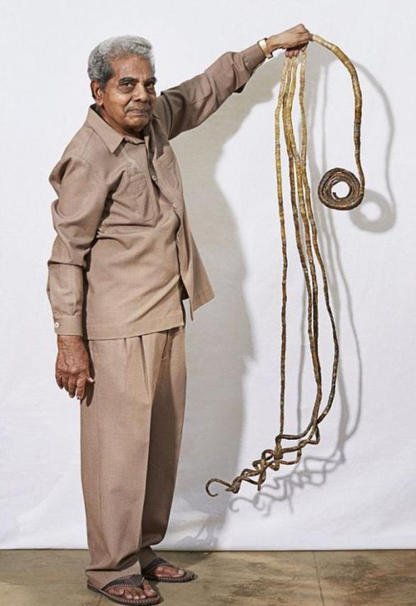 Cắt bỏ bộ móng tay kỷ lục Guinness thế giới sau 66 năm gìn giữ - Ảnh 5.
