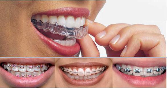 Phương pháp niềng răng phù hợp cho tuổi thanh, thiếu niên - Ảnh 3.