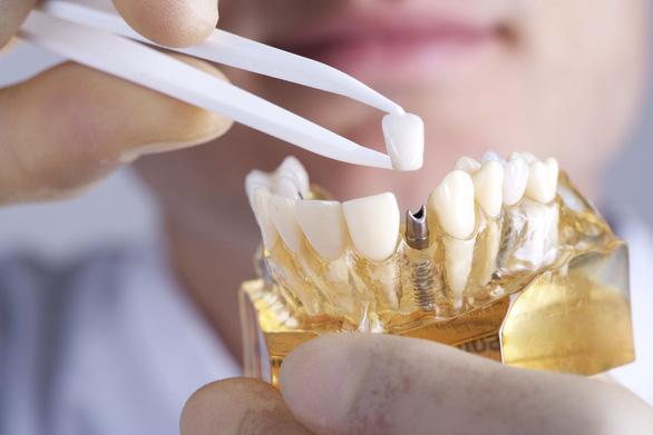 Điều trị thế nào khi trụ răng Implant bị xô lệch? - Ảnh 2.