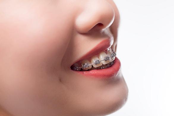 Giải pháp hiệu quả, thẩm mỹ khi niềng răng hô - Ảnh 3.