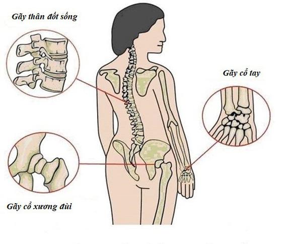 Đừng đợi đến khi bác sĩ kết luận bị loãng xương mới bổ sung canxi - Ảnh 1.