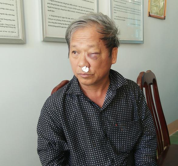 Phóng viên VTV 59 tuổi bị côn đồ đánh bị thương - Ảnh 1.