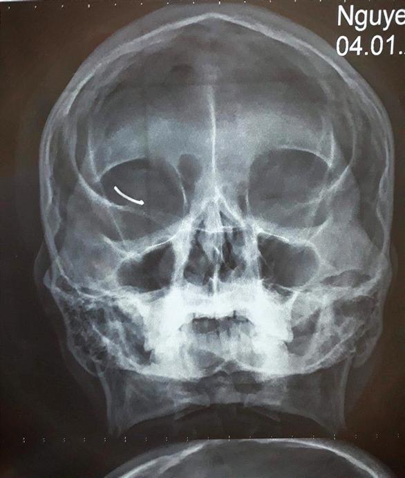 Bị đinh 2,3cm bật ngược cắm thẳng vào mắt khi đóng đinh ở xưởng - Ảnh 1.