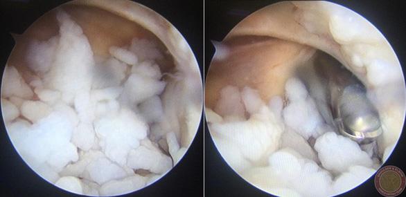 Gắp 200 hạt sụn trong khớp khuỷu của một thanh niên 18 tuổi - Ảnh 1.