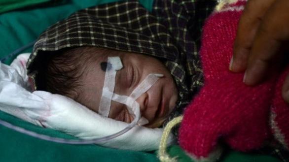 Bé sơ sinh 8 ngày tuổi sống sót kỳ diệu sau khi bị chôn sống gần 3 ngày - Ảnh 1.