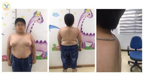 Trẻ vị thành niên mọc lông, bé nam có ngực lớn như phụ nữ vì lạm dụng thuốc - Ảnh 1.