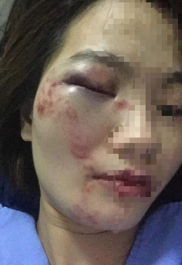 Đề nghị điều tra vụ 4 khách nam lao vào đánh nữ nhân viên xe buýt - Ảnh 2.