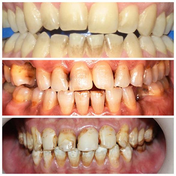 Bệnh viêm quanh răng do hút nhiều thuốc lá - Ảnh 1.