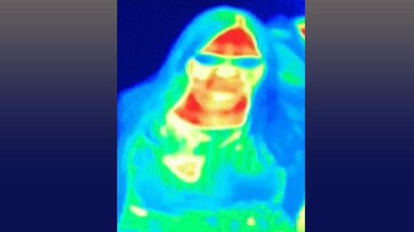 Nhờ chụp ảnh nhiệt ở bảo tàng, khách phát hiện bị ung thư vú - Ảnh 1.