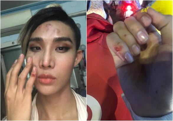 Người mẫu The Face tố bị tài xế Go Viet đánh vào mặt và bóp cổ - Ảnh 1.