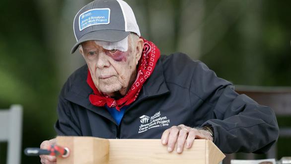 Cựu tổng thống Mỹ Carter bị xuất huyết não - Ảnh 1.