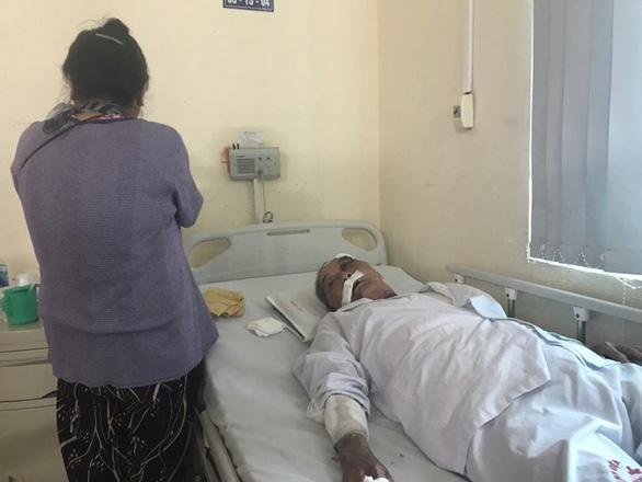 Cụ ông 80 tuổi bị gã xe ôm bắn súng cao su vào mặt, đánh rạn xương sườn - Ảnh 2.
