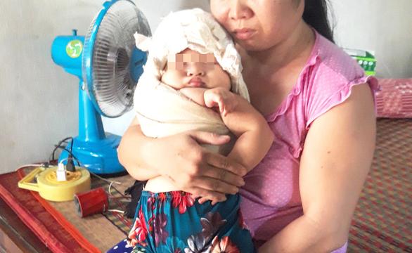 Bé gái bị liệt tay sau sinh, bác sĩ nói ở đâu cũng xảy ra, chỉ ít hay nhiều thôi - Ảnh 1.